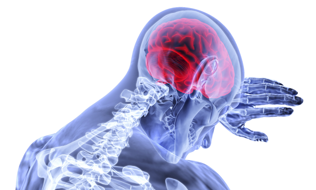 Picture demonstrating a Traumatic Brain Injury (TBI)